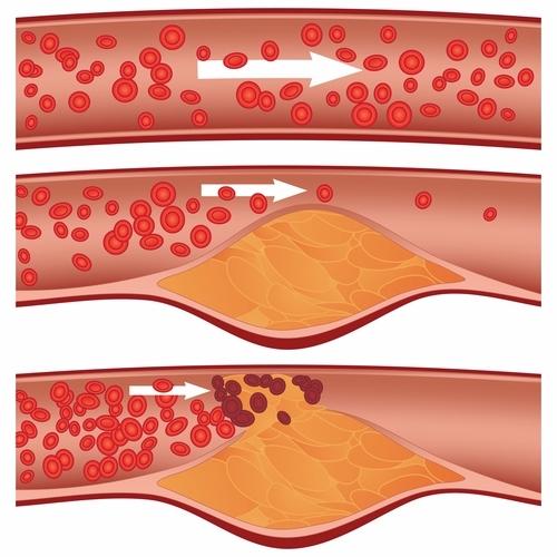 cuales son las siglas del colesterol bueno y malo